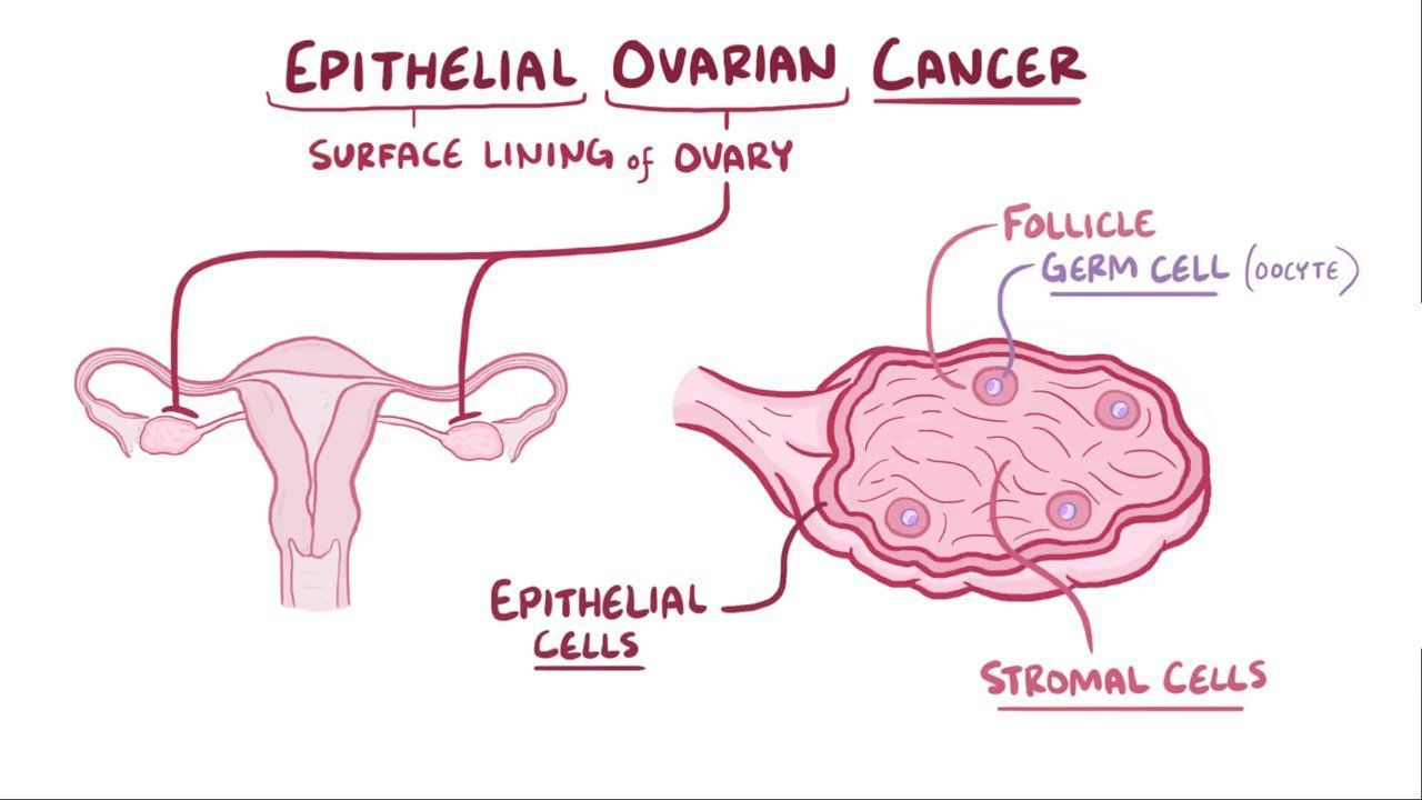 ovarian cancer epithelial types