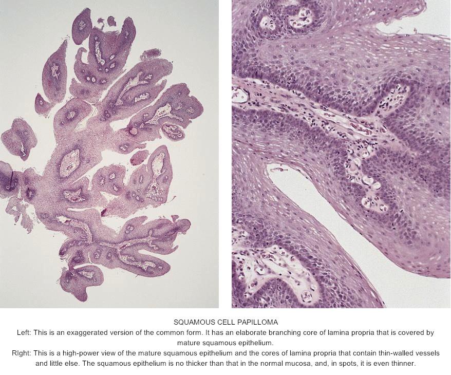 papilloma skin histopathology