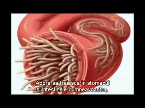 Viermi umani simptomele de vierme Viermii intestinali