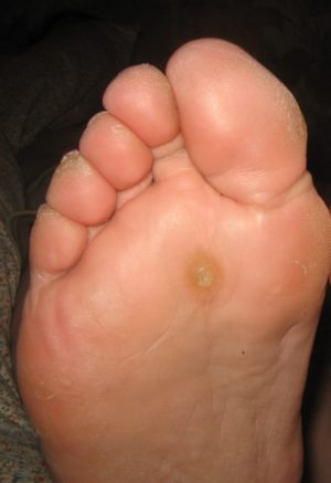 warts on your foot papilom bucal poze