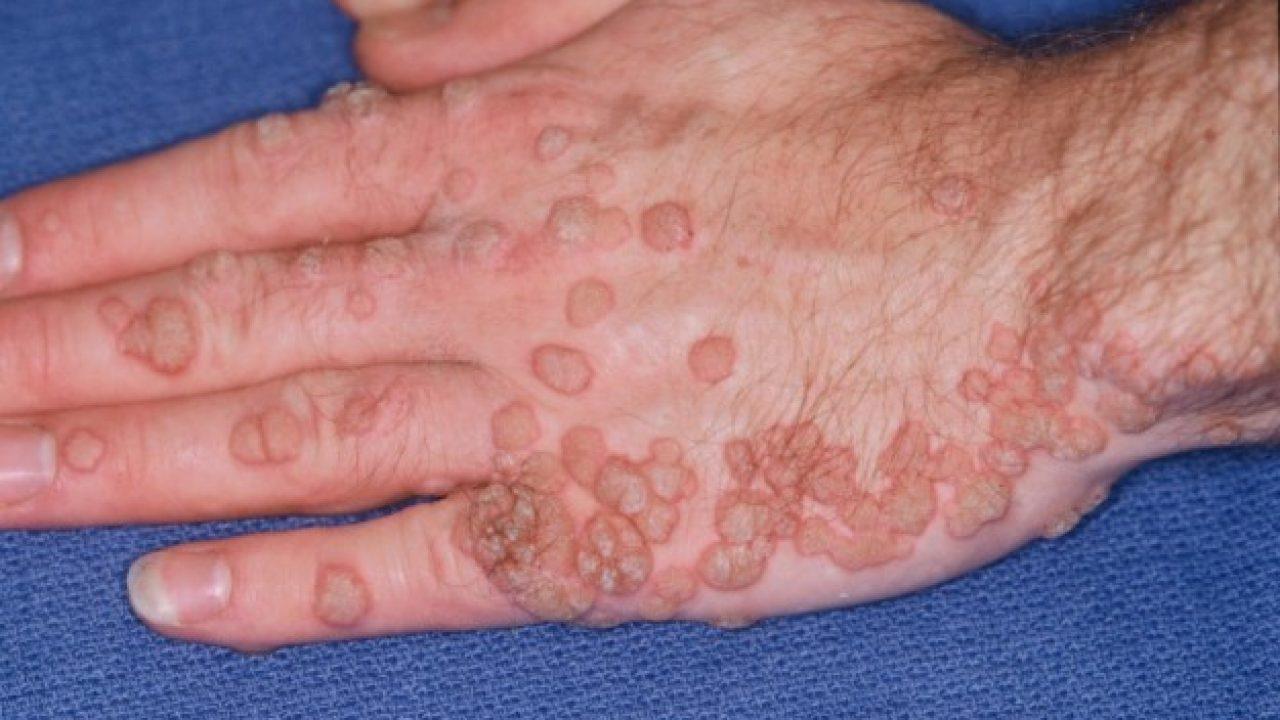 rimedi contro papilloma virus