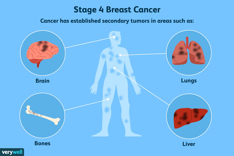 Aggressive cancer spread, Aggressive cancer spread.