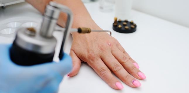 Care medic tratează papiloamele la femeile de pe corp