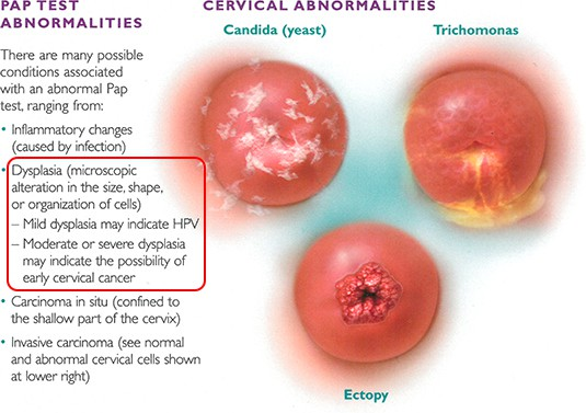 hpv causes dysplasia