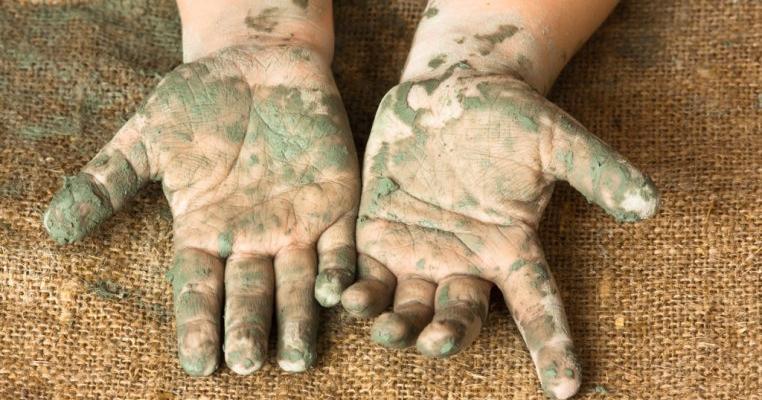 Paraziți și adaptări ale paraziților, Helmintiaza- boala mâinilor murdare - Farmacia Ardealul