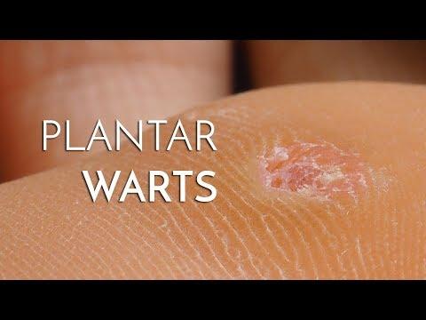 remedii naturiste pentru paraziti intestinali la copii