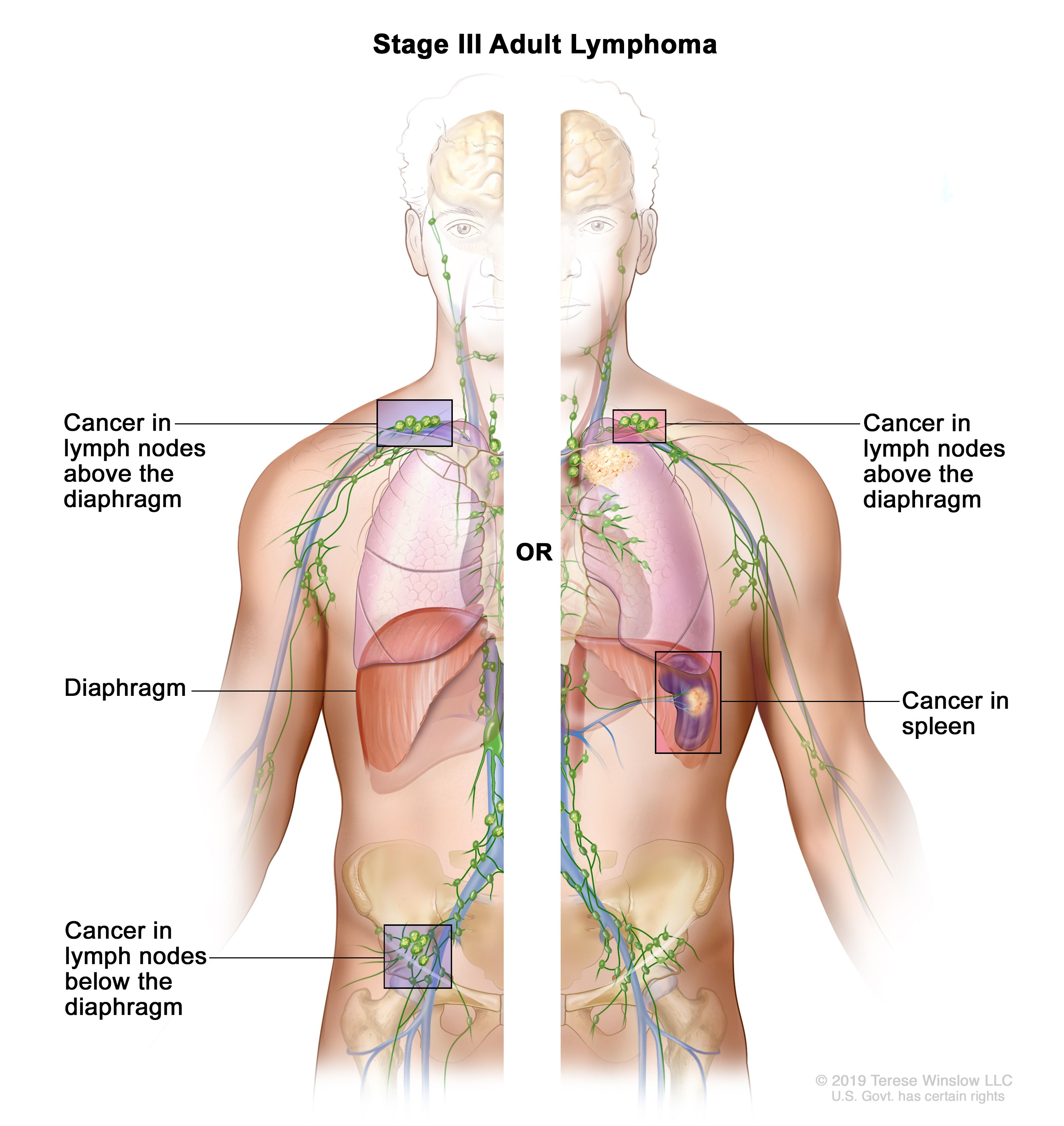 hodgkin cancer causes rectal cancer query