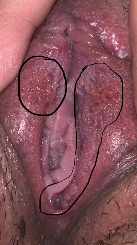 Vestibular papillomatosis with genital warts, Do I have genital warts? paraziti u stolici kod bebe