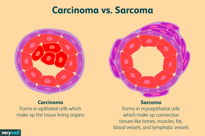 cancer vs sarcoma