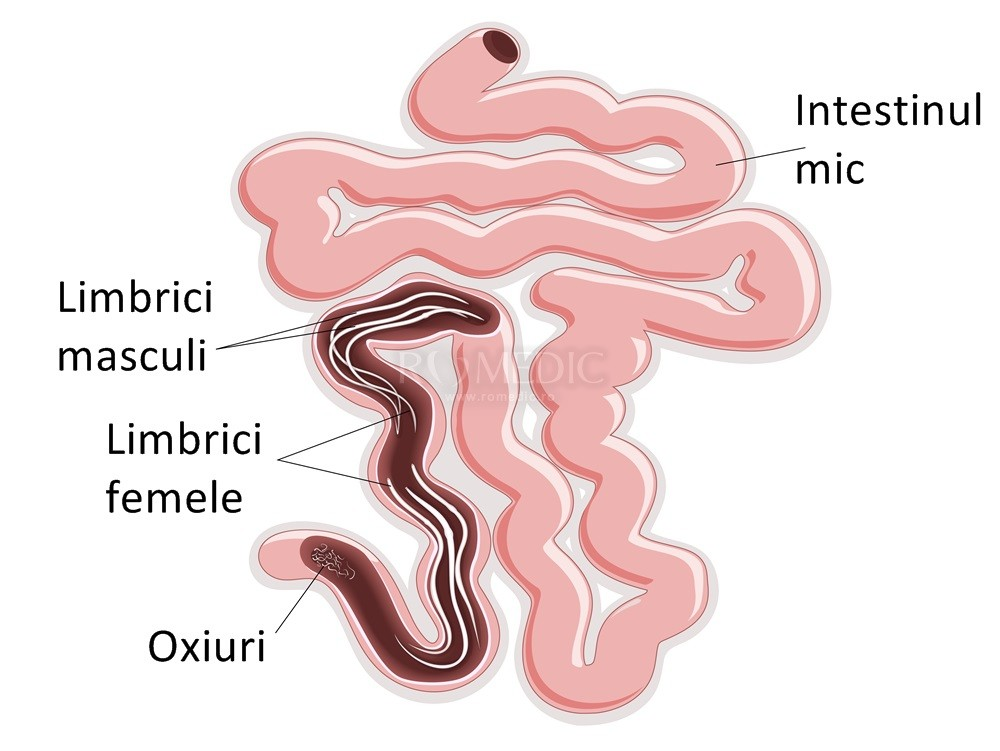 oxiuri in zona genitala