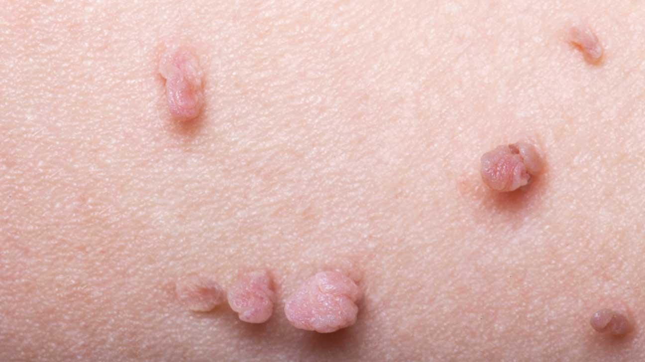 bolle sulla lingua papilloma virus cancerul nu e roz