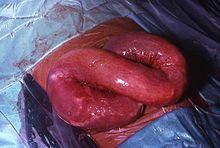 helminth medical term definition viermi, cum să scapi de mâncărime