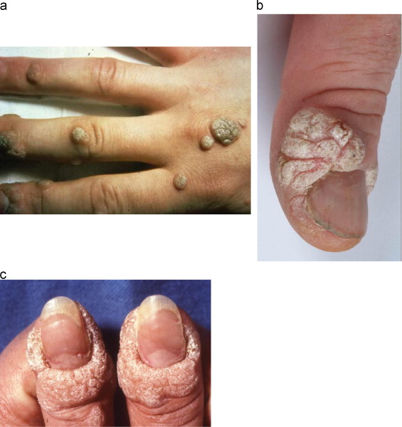 human papillomavirus liver parazit giardia lamblia simptomi