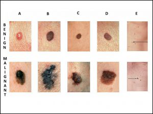 other term of papilloma