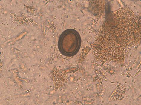 squamous papilloma conjunctiva