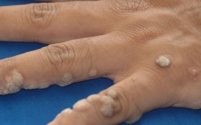 virusul papiloma poate fi vindecat tratament eficient cu vierme rotunde