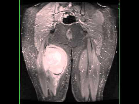 unde să îndepărtați papiloma vladivostok hpv virus and fertility