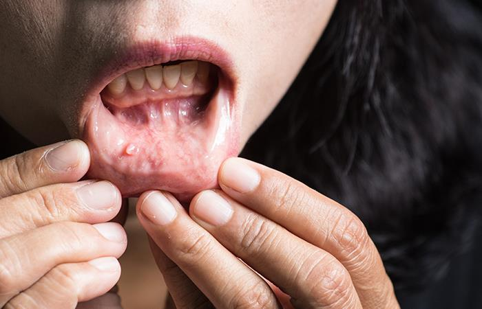 cancer bucal primeros sintomas tratament pt oxiuri la adulti