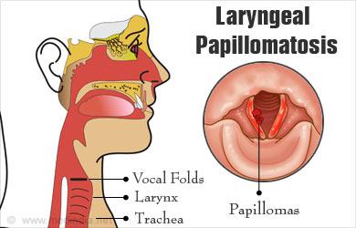 what causes laryngeal papilloma parazit de vierbă