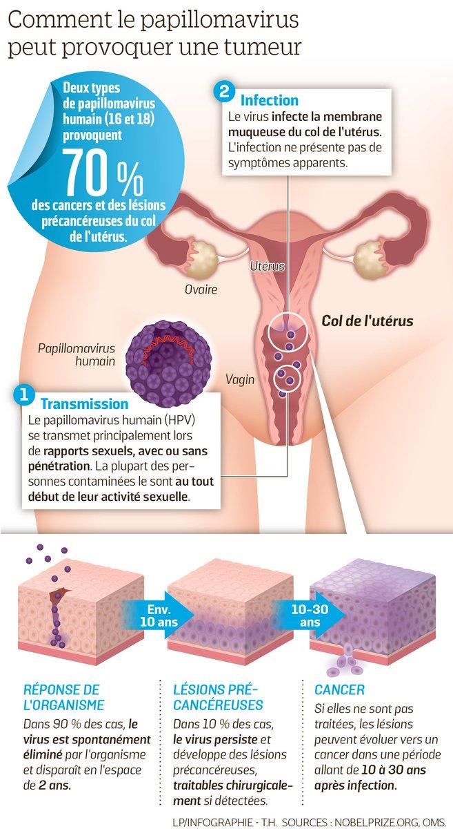Papillomavirus traitement femme. Guerir le papillomavirus chez lhomme.