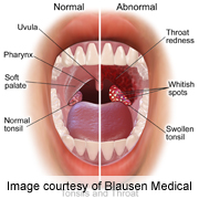 hpv cause throat cancer