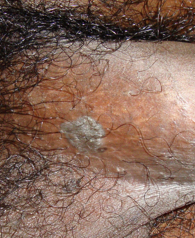 condyloma acuminatum epidemiology ce medicament pentru a vindeca viermii