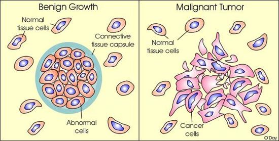 cancer malign si benign