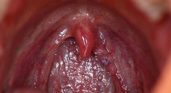 hpv impfung innsbruck papiloma labios boca