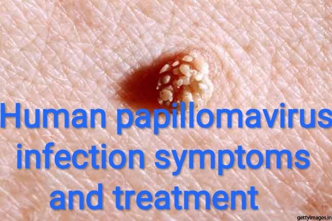 genital hpv infection treatment asistența la ajutorul enterobiozei