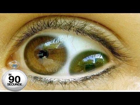 Telazioza oculară canină produsă de Thelazia callipaeda