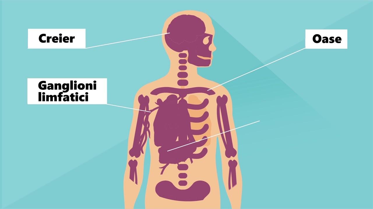 cancer limfatic ultima faza tratamentul simptomelor papilomului