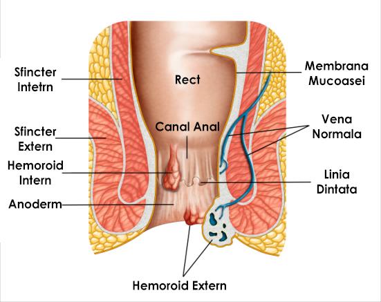 Sfat 1: Cum să scapi de verucilor genitale - Infecție - Condilomul continuă să crească