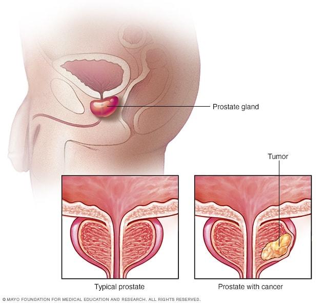 Viaţa sexuală şi prostata