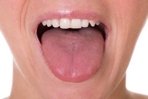 condilom în tratamentul gurii dieta atunci când curățați corpul de paraziți