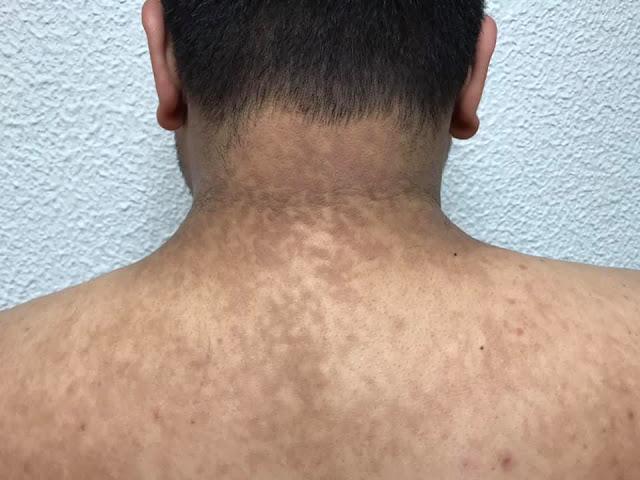 tratamiento papilomatosis reticulada y confluente cheloo nevasta