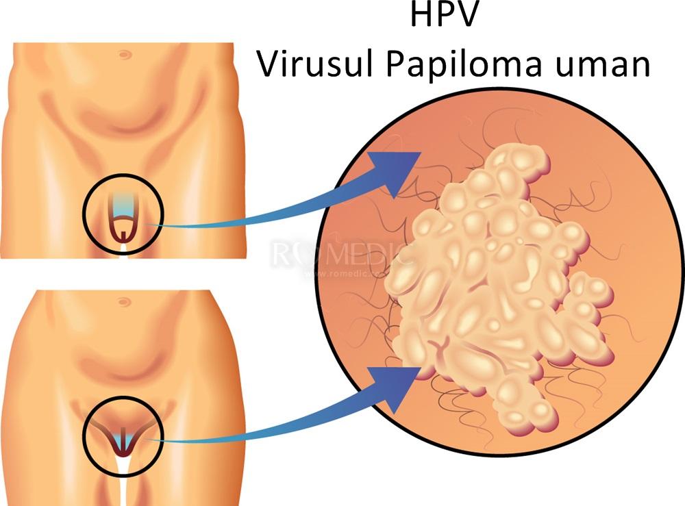 vaccin împotriva virusului papilomului uman