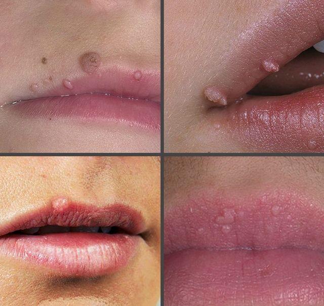 tratamentul verucilor buzelor