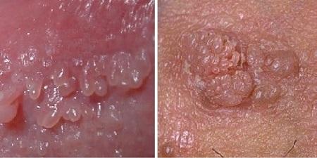cum să rămâneți gravidă cu veruci genitale