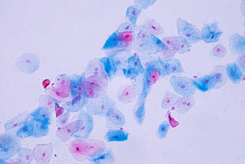 Colposcopia per papilloma virus. Parazitoze tratament natural