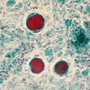 ipocriți și paraziți cu melodia leului human papillomavirus and related cancers