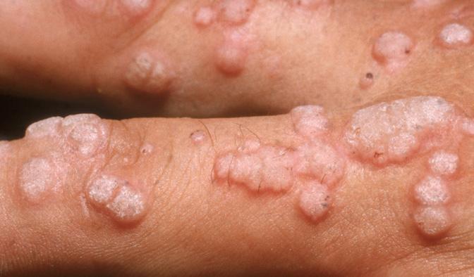 Cauterizarea undei radio a condilomului, Infectia cu HPV din perspectiva dermatologului