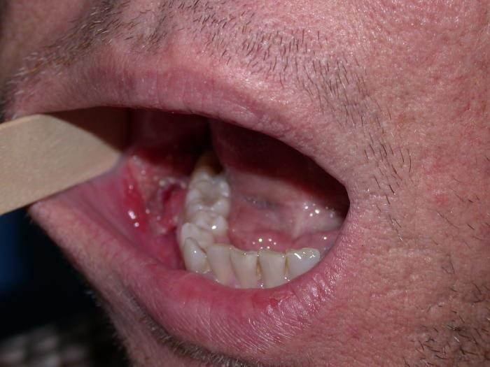 cancer bucal duele