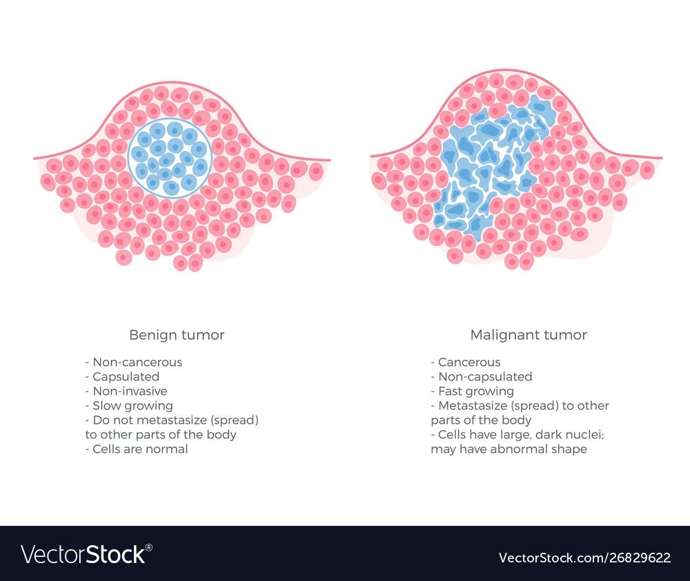 helminthosporium solani sarcoma cancer pediatric