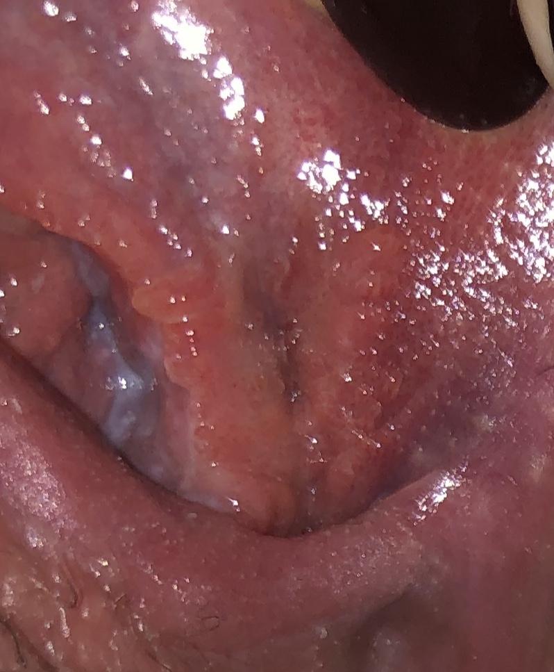 Virus herpes simplex, Papilloma virus e herpes labiale, Herpes papilloma virus