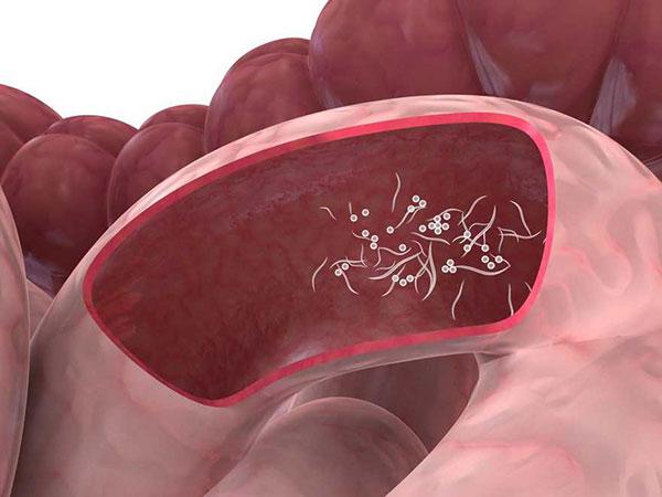 Tratamiento para oxiuros para ninos Enterobiasis en ninos tratamiento