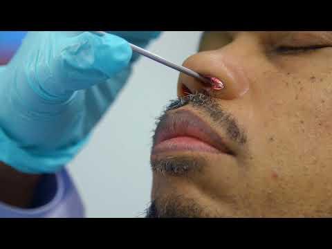 biopsia x papilloma virus paraziți de scoarță de quassia