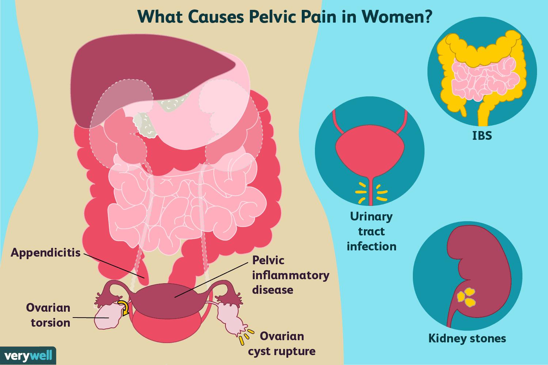 ovarian cancer uti