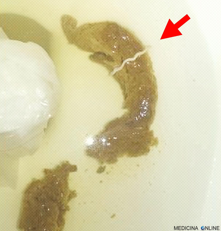 papiloma uvula tratamento