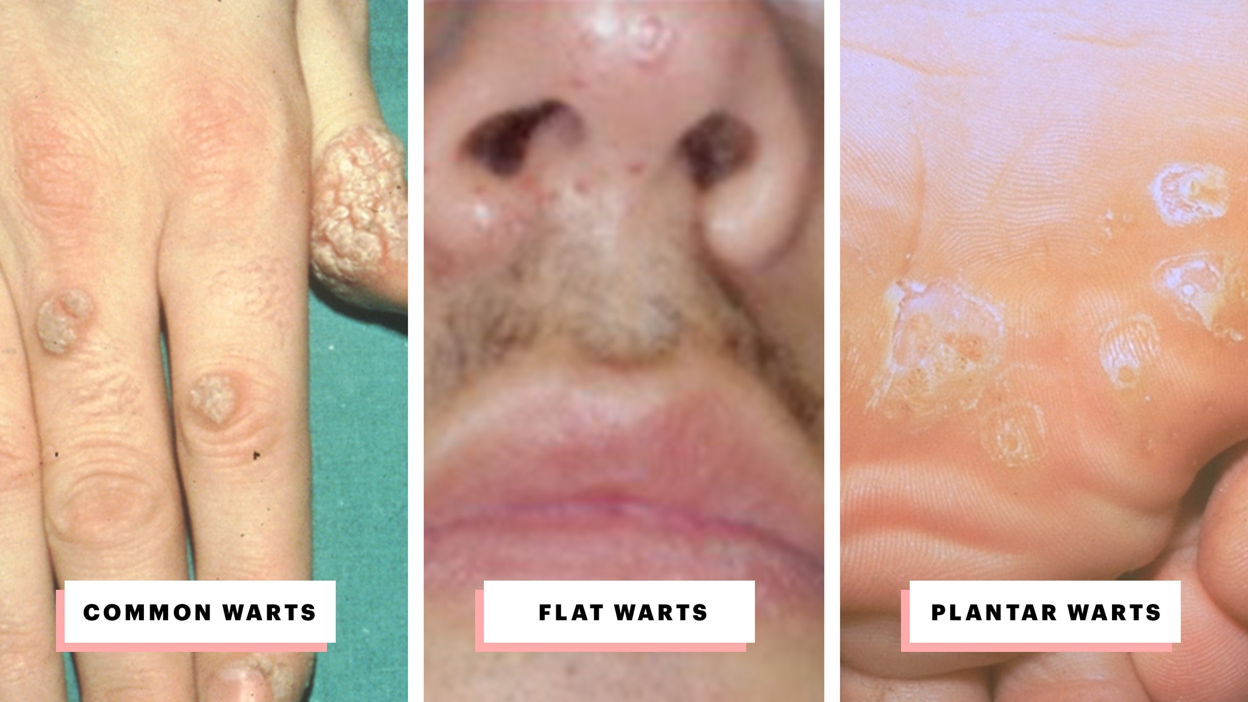 warts on mouth