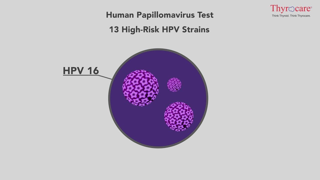 dieta pentru detoxifierea ficatului hpv virus is dat een soa